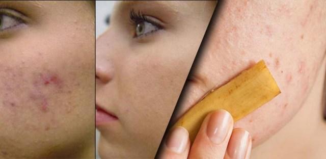 Kozmetika iz kućne radinosti - Kora od banane za glatko lice